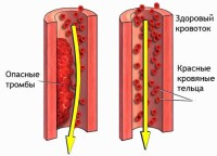 clot_of_blood